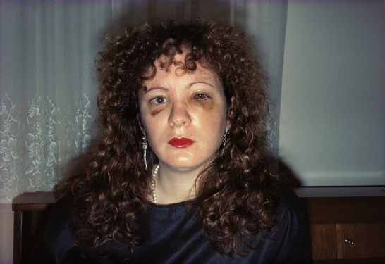 Nan Goldin, Nan after being Battered, New York City, 1984. Archival pigment print mounted on Dibond, 40.6 x 61 cm. © Nan Goldin.